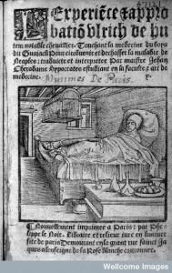 L0005341 Ulrich von Hutten in in bed, suffering from syphilis.