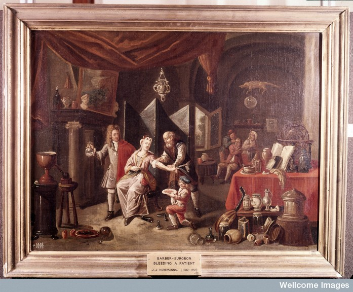True English Bloodletting – Early Modern Medicine