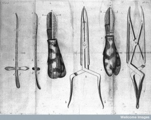 Le Dran, Surgical instruments for lithotomy, 1730 Credit: Wellcome Library, London.