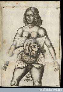 L0051871 Illustration of woman in utero