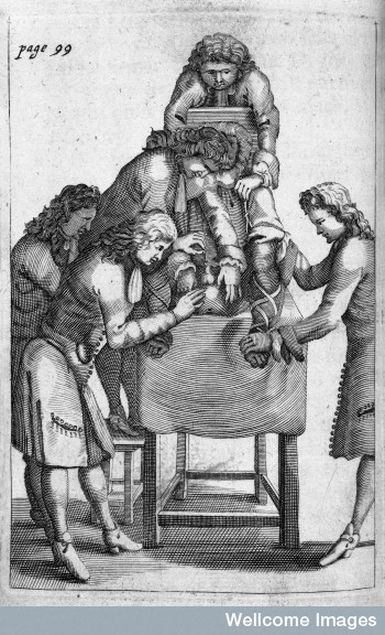Francois Tolet, Lithotomy operation. Credit: Wellcome Library, London.