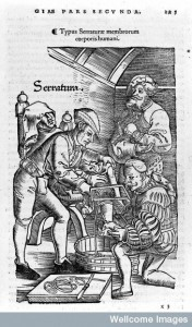 Amputation scene, illustration, woodcut, 16th century. Credit: Wellcome Library, London.