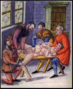 Surgery_of_hernia_in_16th_century